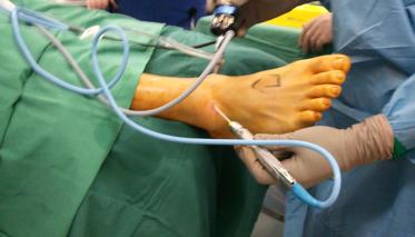 artroscopie de glezna