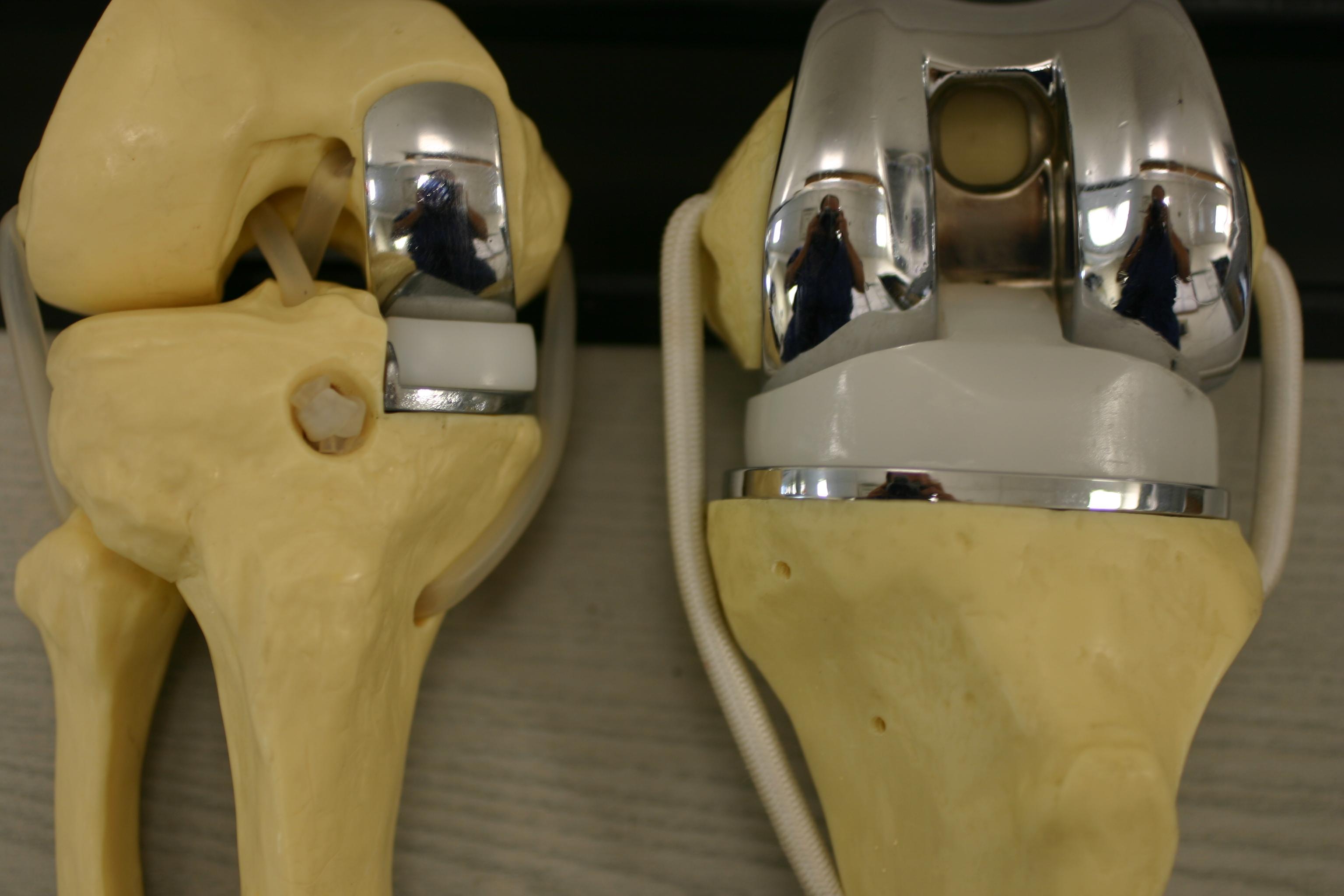 diferenta intre proteza partiala sau totala de genunchi
