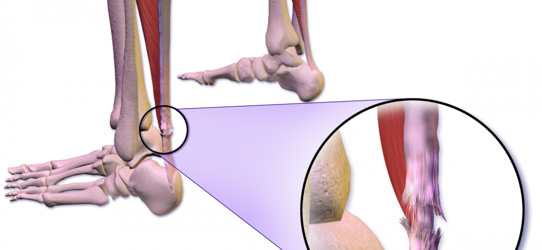 ruptura de tendon achilian