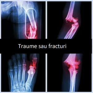 traume sau fracturi