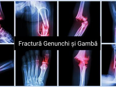 fracturi genunchi