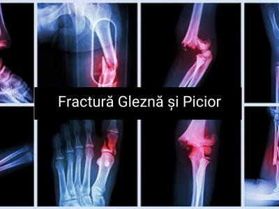 fracturi glezna